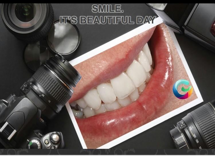 """Senyum Indah dan Gigi Sehat, Global Estetik. """"SMILE.. It's a Beautiful Day"""""""